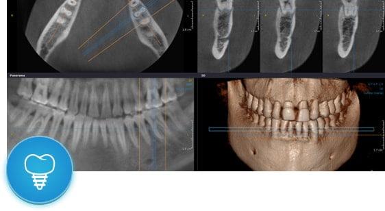 Имплантация зубов по технологии 3D