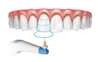 Гигиена зубной полости